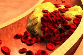Insulina e i lipidi